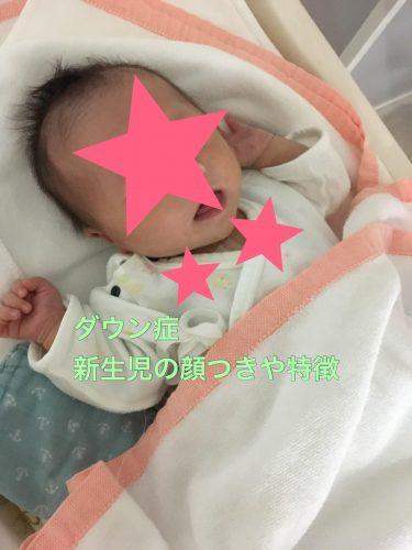 ダウン症児の顔つき!新生児は普通?いつから特徴が出やすいの?