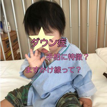 ダウン症の手相の特徴!ますかけ線って?指が短いか検証